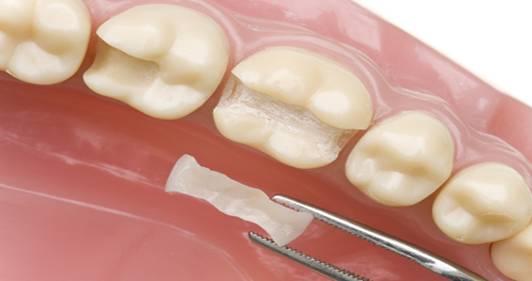Konservatif Diş Tedavisi