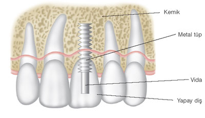 dis-ve-agiz-sagligi-implant-56-01