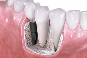 implant-dis-ekme-1200