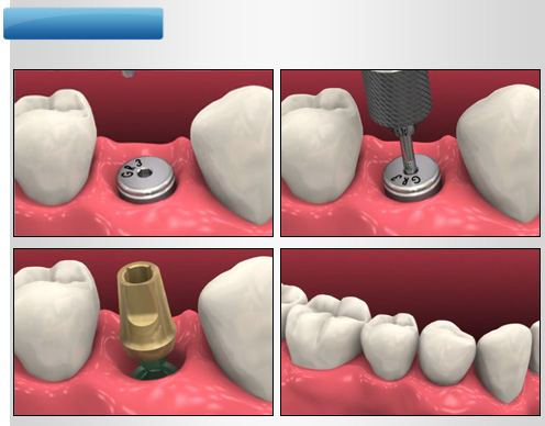 implant-once-sonra-2