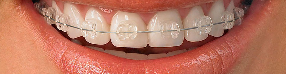 ortodontikTedavi