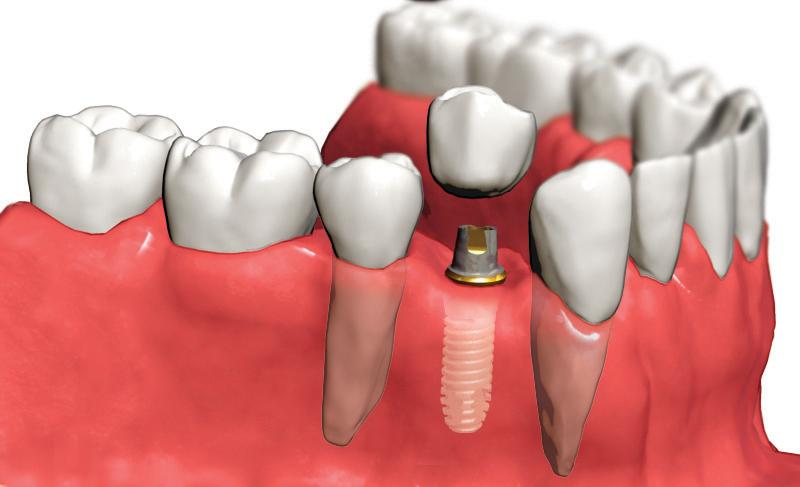 tek-dis-implant