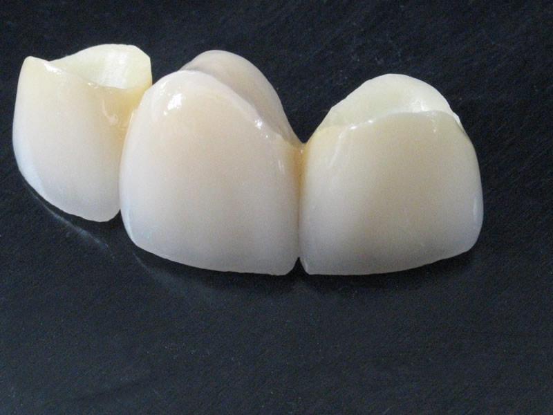 Diş Zirkonyum Fiyatları