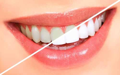 Ev-Tipi-Diş-Beyazlatma-Sistemleri