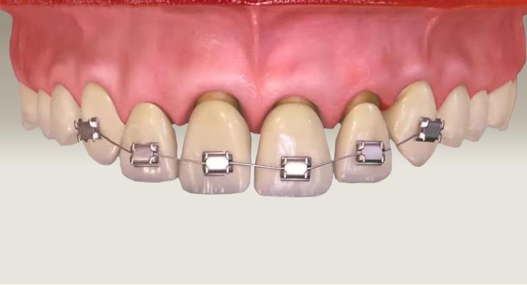 Ortodontik tedavi hangi yaşlarda yapılır