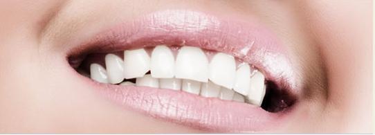 diş renk