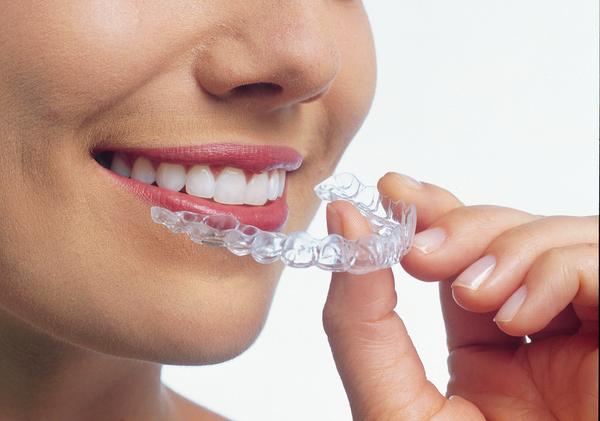 Diş teli taktıracak olanlara GÜZEL HABER ile ilgili görsel sonucu