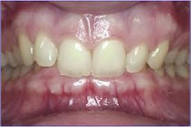 Örtülü diş kapanış
