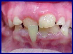 çapraz diş