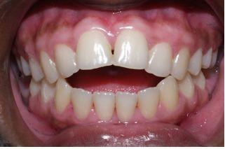 Açık kapanış diş bozuklukları
