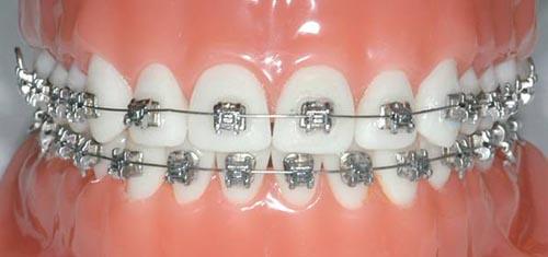 Metal-Diş-Telleri