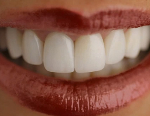 Porselen Kaplama Diş Eti