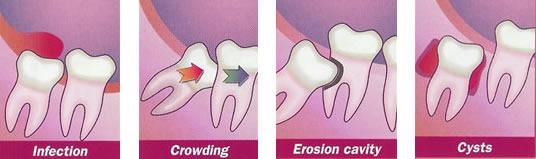 Yirmilik Diş Ameliyatı 1