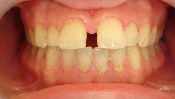dişlerde aralık