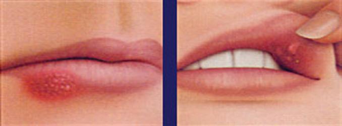 dudakta-yaralar