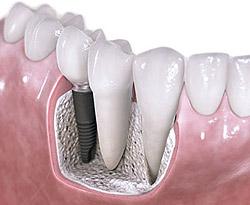 dis-implant