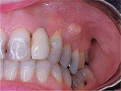 Apseli Diş Çekimi