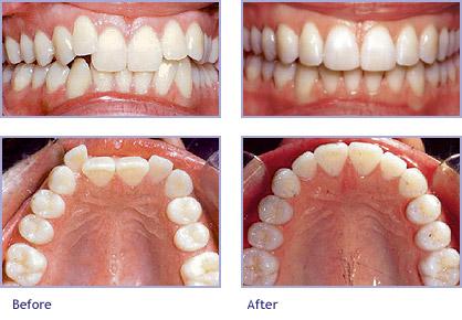 telsiz diş çarpışıklığı tedavisi