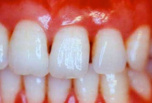 Diş Hekimi Kontrolleri ile Diş Hastalıklarına ve Çürüklere Erken Teşhis