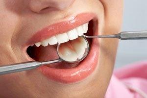 Sigara, diş eti iltihaplarına yol açıyor