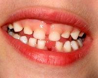 Kalıcı diş çıkarma dönemleri