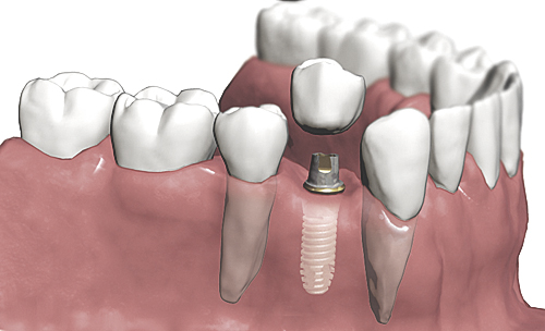 Doğal dişe en yakın çözüm implant tedavisi