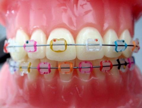 eğri-diş-tedavisi